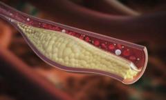 Најздравиот природен напиток: Кажете збогум на лошиот холестерол и запушените артерии